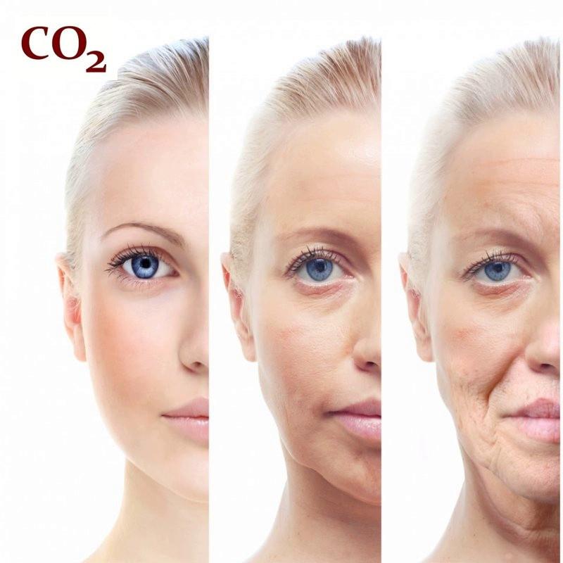 Комплекс СО2-экстрактов Антивозрастной зимний